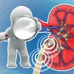 درمان سریع سنگ کلیه بدون نیاز به دارو
