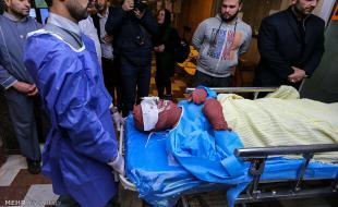 حوادث چهارشنبهسوری ۷۵ کرمانشاهی را مصدوم کرد