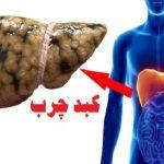 کبد ۳۰ درصد ایرانیها چرب است